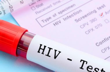 AIDS: in farmacia il primo test fai da te per l'HIV